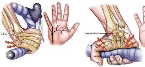 lesiones en ciclismo, manos